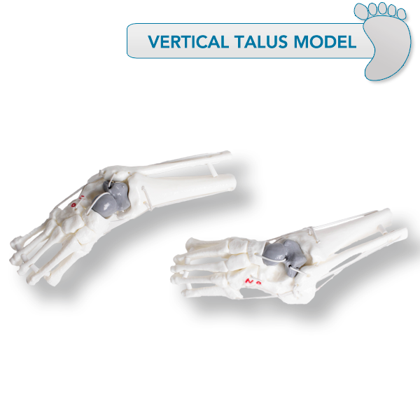 Vertical Talus Models - CHOOSE OPTION BELOW